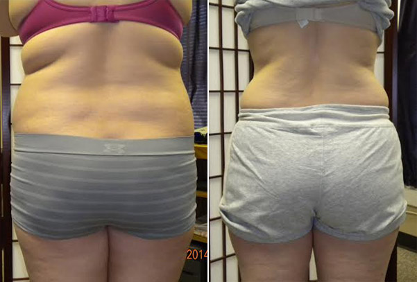 Weight loss before and after posterior view.