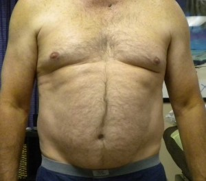 Before losing weight anterior view